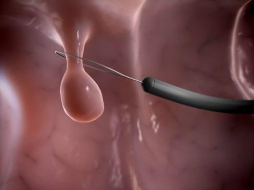 Методы лечения полипов