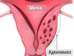 Что такое аденомиоз матки?