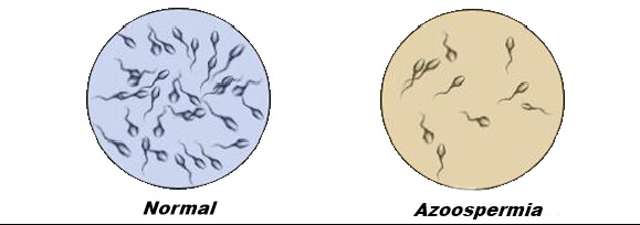 Обструктивная азооспермия