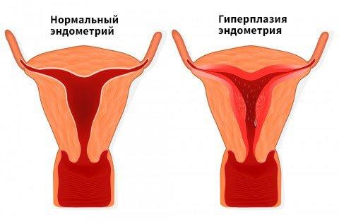 Что такое гиперплазия?
