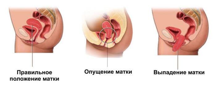 Последствия опущения матки