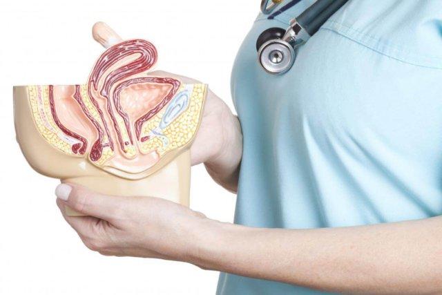Диагностика пролапса гениталий